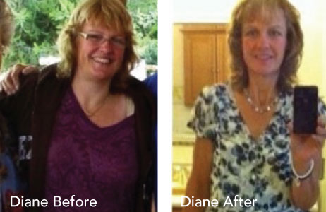 HCG Results Diane Before & After Photos