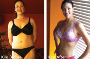 HCG Results Kim Before & After Photos