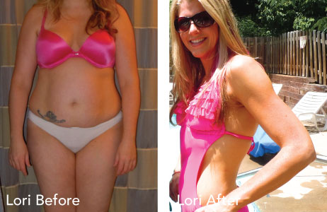 HCG before and after photos Lori