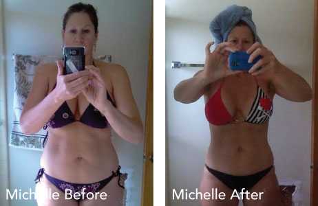 HCG before and after photos Michelle