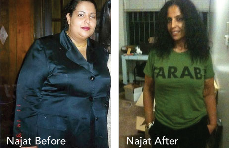 HCG Results Najat Before & After Photos