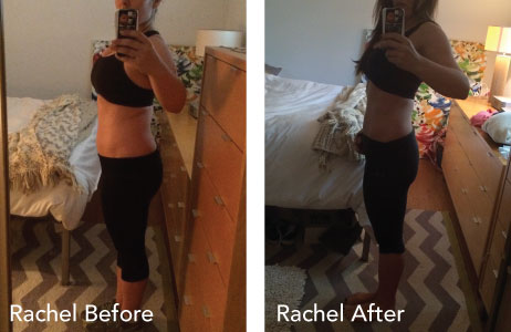 HCG Results Rachel Before & After Photos