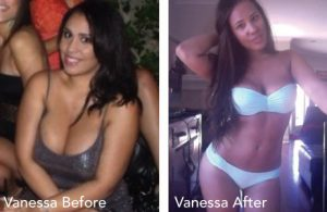 Vanessa Before & After Photo_img