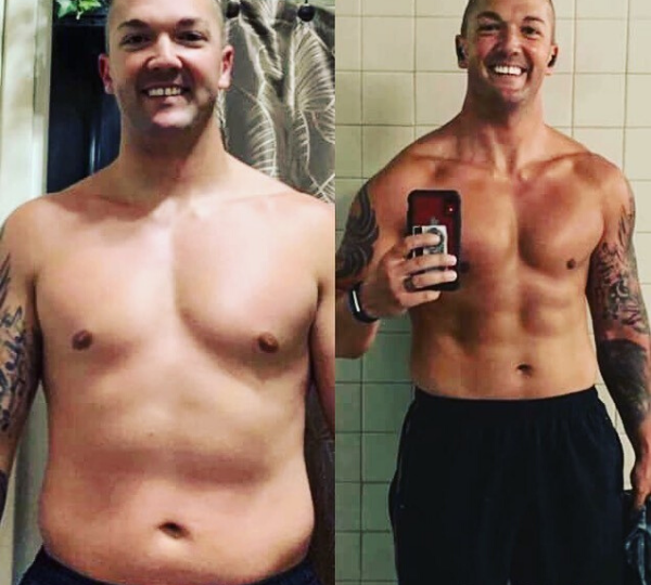 Before and After HCG Diet